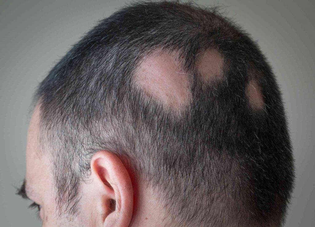 łysienie plackowate przykład choroby