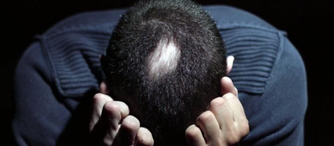łysienie plackowate w trakcie choroby